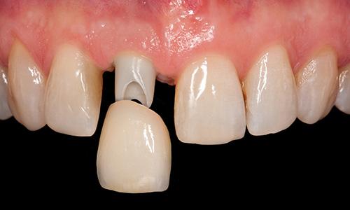 間 ブラシ 臭い 歯 歯間ブラシが血臭い!その原因と対策について現役の歯科衛生士が教えます。
